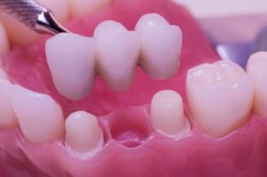 Dental Bridges - Cosmetic Dentistry - Lucedale, MS