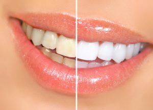 Teeth Whitening - Dentists in Lucedale, MS