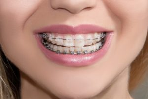Minor Orthodontic Treatment - Lucedale, MS - Dentists