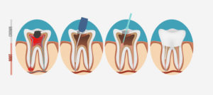 Root Canal - Dentists - Endodontist - Lucedale, MS